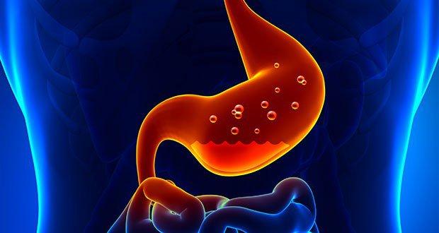7 Façons D'éliminer les Brûlures D'estomac