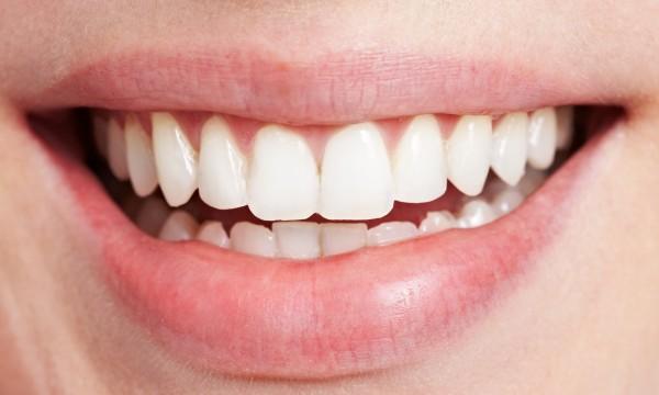 9 Conseils pour des Dents et des Gencives Saines et Belles