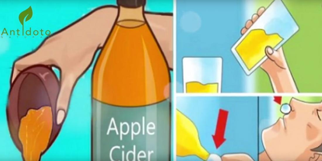 Boire du Vinaigre de Cidre de Pomme avant D'aller au Lit Changera Votre Vie