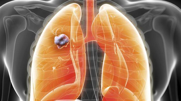 Cette Plante Détruit 86% des Cancers du Poumon et du Sein !