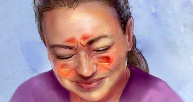 Comment Soulager votre Infection des Sinus en 20 Secondes ?