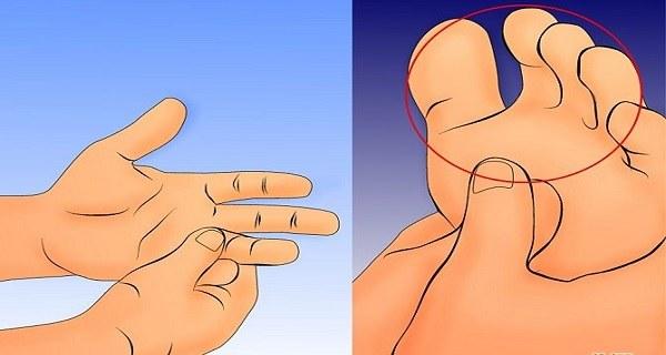 Comment vous Pouvez Éviter les Fourmillements dans les Mains et les Jambes?