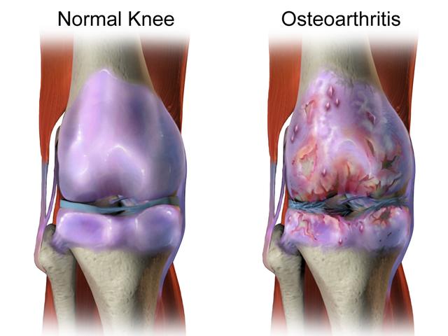 L'arthrose N'est pas Causée par l'usure du Cartilage… Méfiez-vous de la GLYCATION !