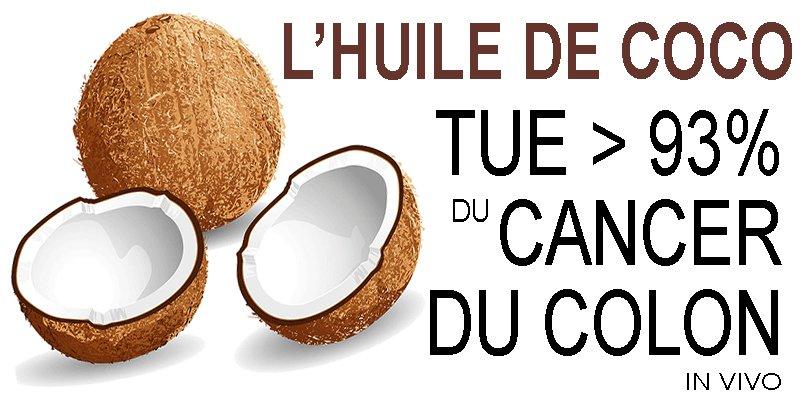 L'huile de Noix de Coco Tue>93% des Cellules de Cancer du Côlon In Vivo
