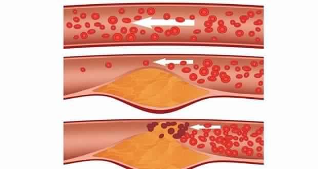 Nettoyez vos Artères Obstruées et Éliminez le Mauvais Cholestérol avec ce Remède Naturel