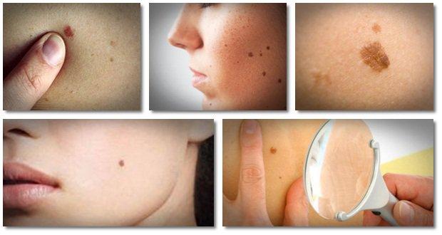 Le peeling pour les acnés