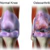 L'arthrose n'est pas causée par l'usure du cartilage… Méfiez-vous de la GLYCATION